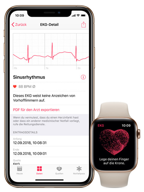 Apple Watch Series 4 - EKG Funktion-iphone-watch-ecg-chde.jpeg